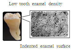 Low tooth enamel density ,Indented enamel surface