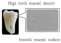 High tooth enamel density,Smooth enamel surface