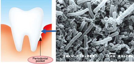 Periodontal Disease Destroys Periodontal Tissue, Leading to Tooth Loss